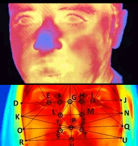 thermographie médicale